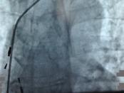 aritmije kardio hr lead removal