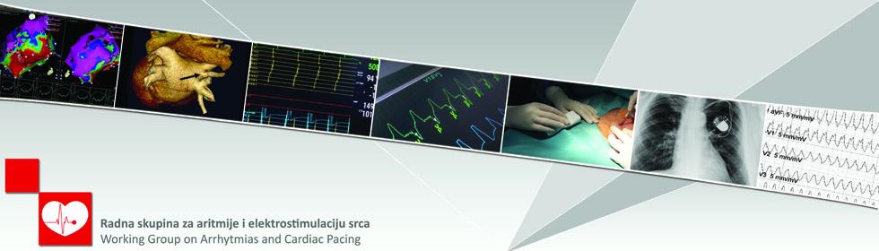 Radna skupina za aritmije i elektrostimulaciju srca HKD