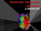 VT ablation KBCSM_featured